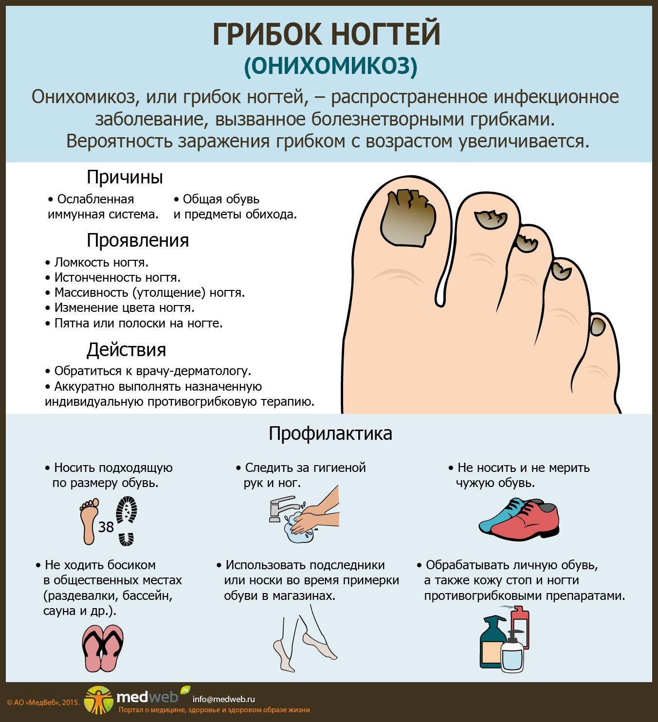 Грибок кожи вокруг ногтя на ноге