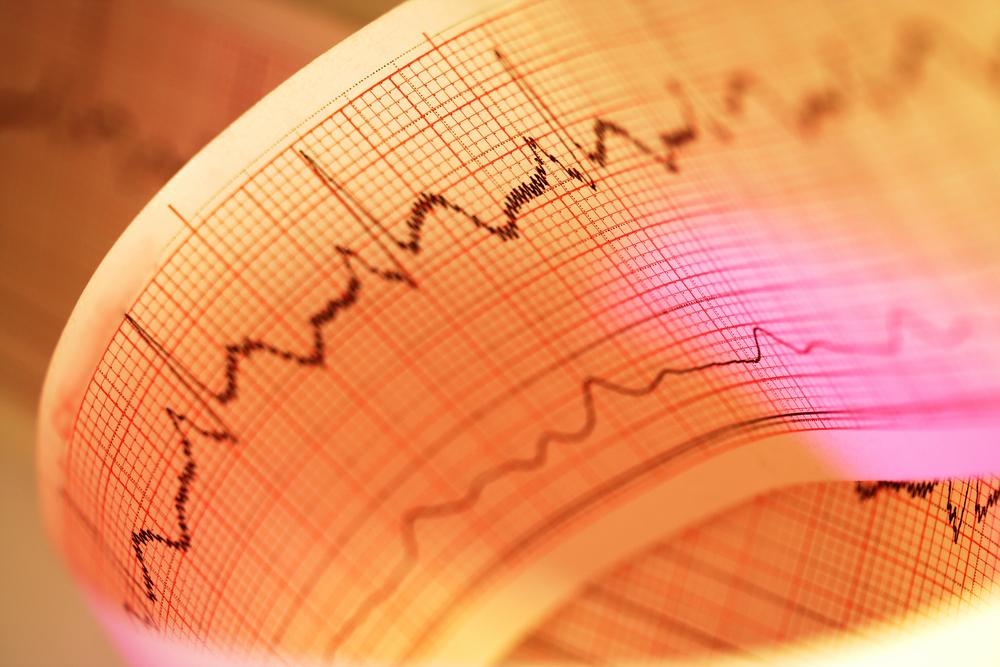 Тахикардия: почему так стучит сердце?