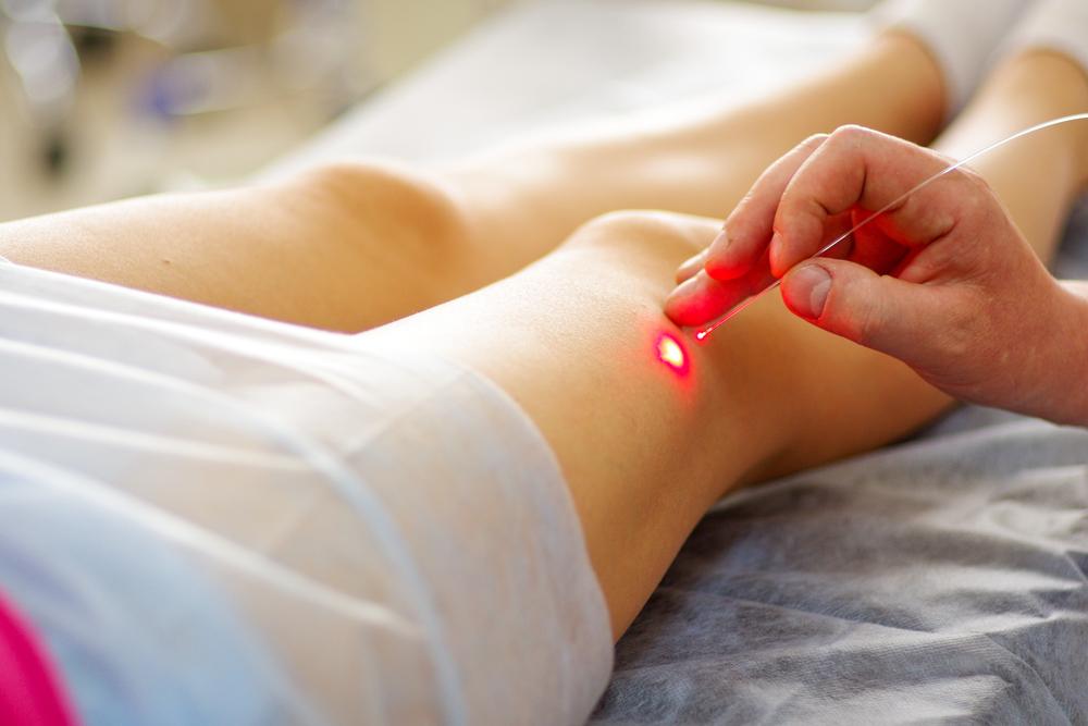 способы лечения варикоза