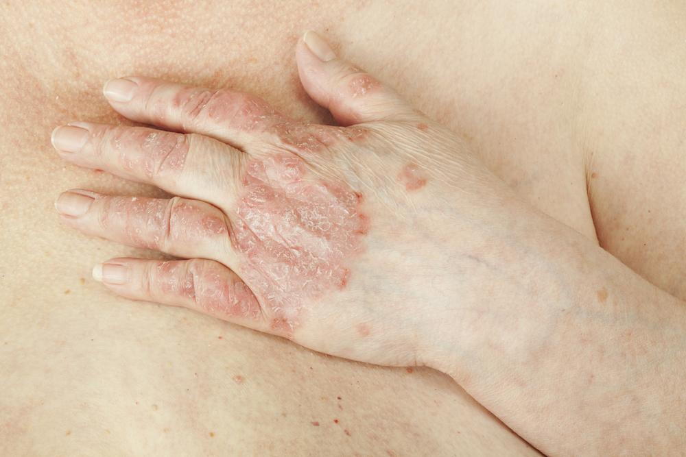 Лечение Псориаза Салициловой Мазью Отзывы