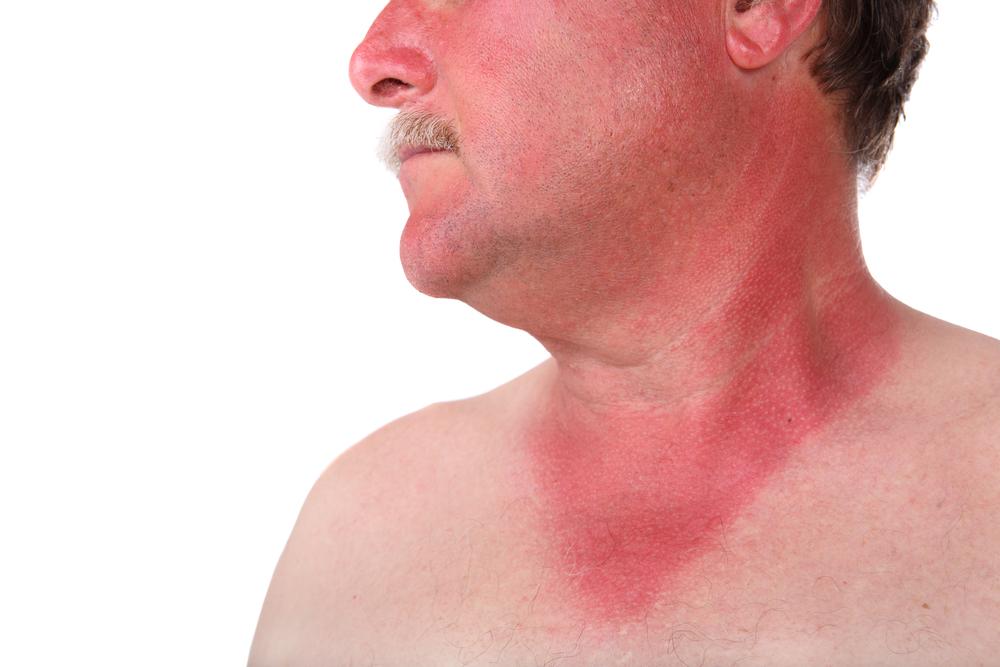 Диета при заболевании геморрагической лихорадкой