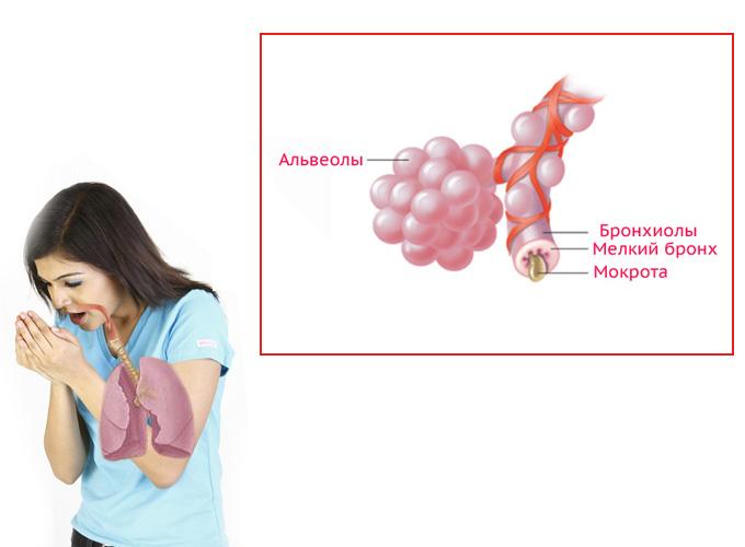 Изучены данные о лечении 42 больных с гематогенным остеомиелитом позвоночника.