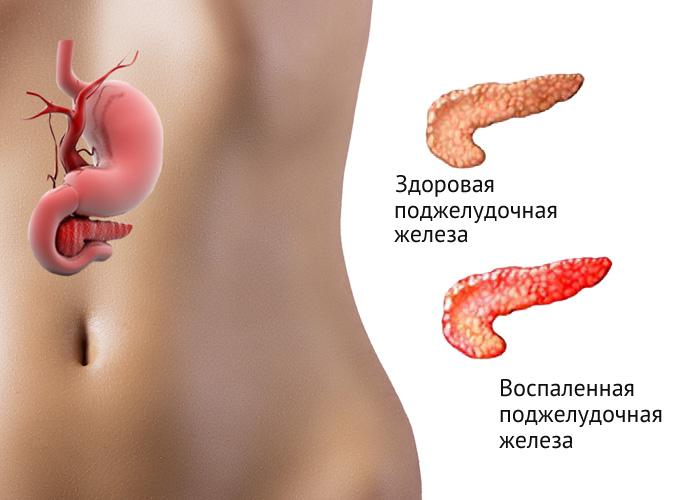 Секс панкреатит