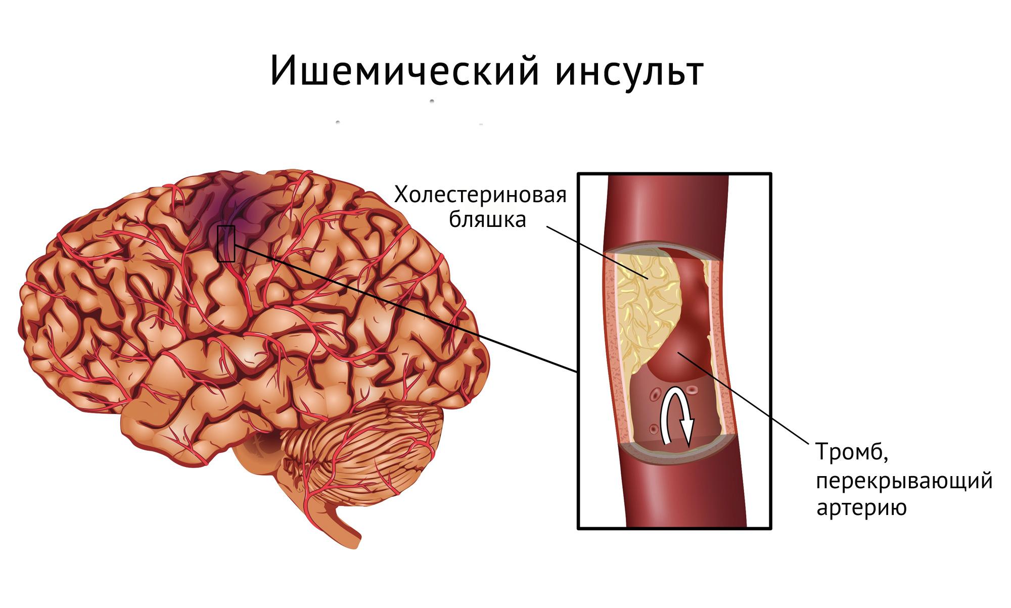 похудение во время инсульта