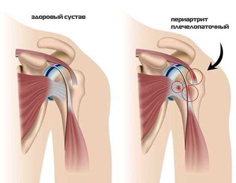 Лечение плечевой сустав боль при поднятии руки лечение народными средствами