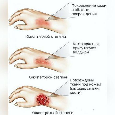 Ожоги лечение в домашних условиях мазь - Xaxatalka.ru