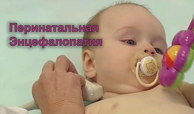 Энцефалопатия головного мозга у новорожденных